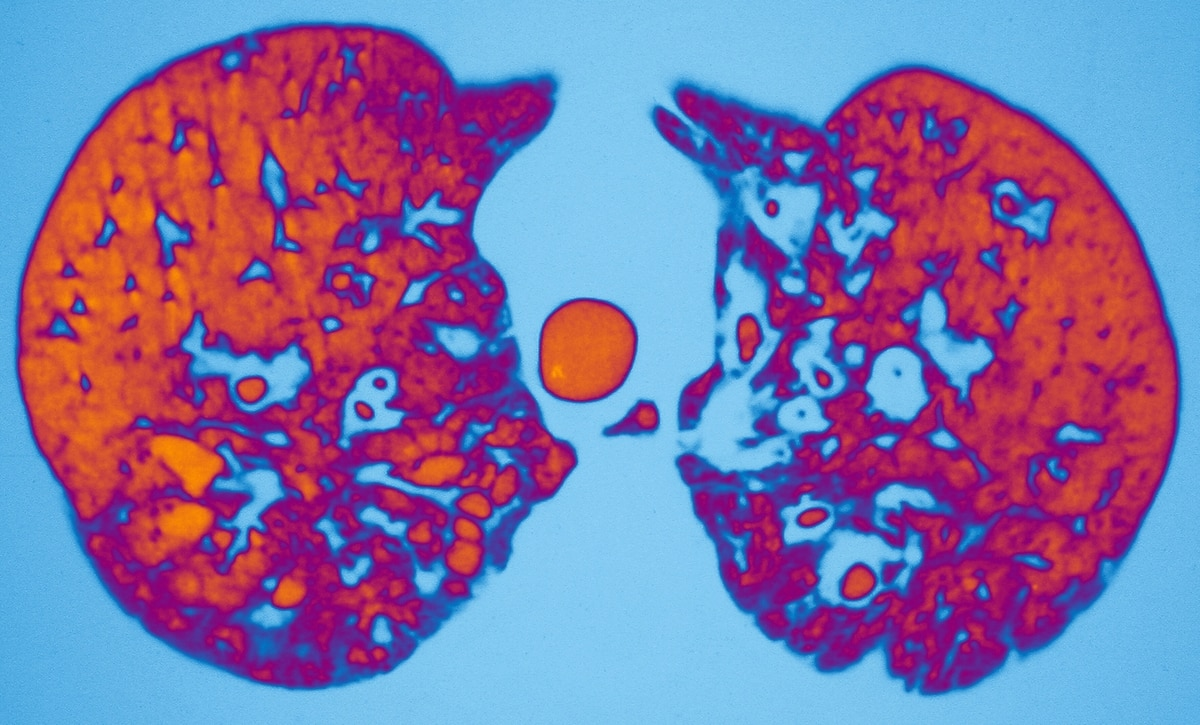 Cystic Fibrosis CT-scan