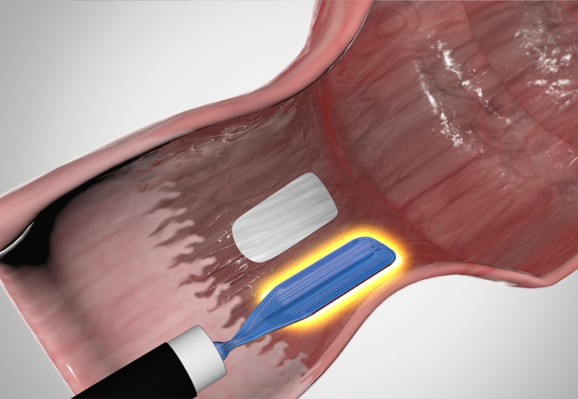 Barrx™ Channel RFA Endoscopic Catheter Ablation
