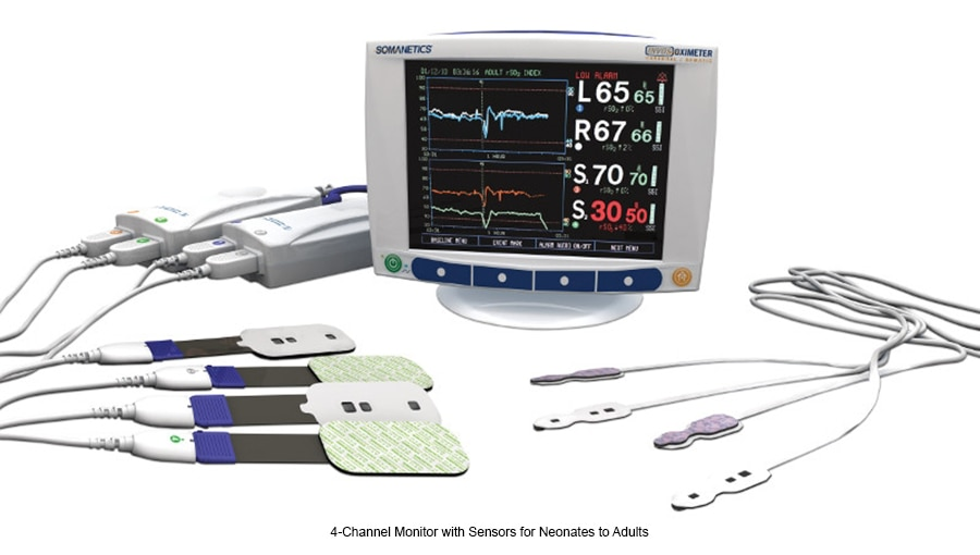 4-Channel Monitor with Sensors for Neonates to Adults