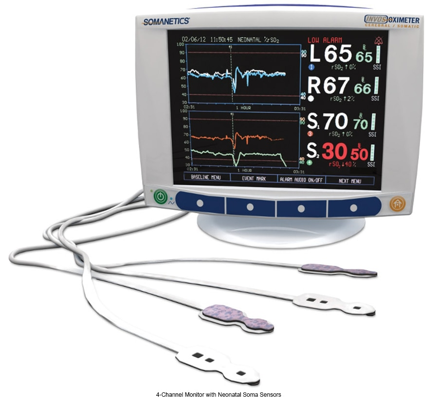 4-Channel Monitor with Neonatal Soma Sensors