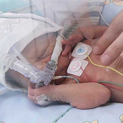 manage neonatal stressors medtronic