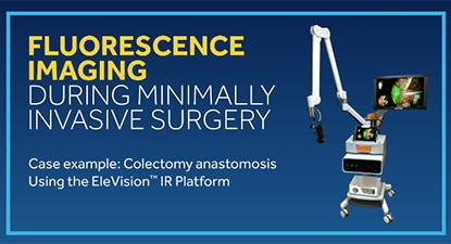 EleVision™ IR Platform in Colectomy Anastomosis