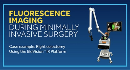 EleVision™ IR Platform Right Colectomy