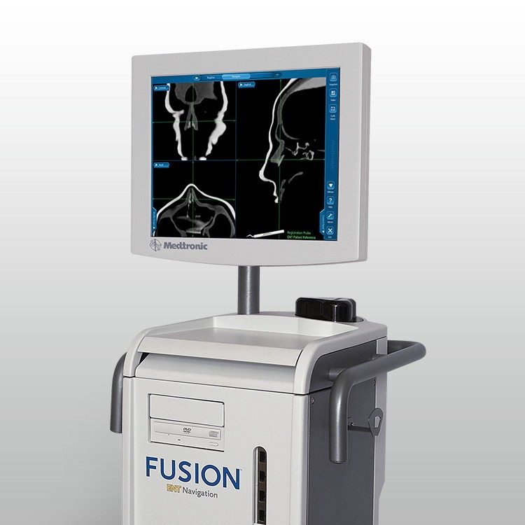 Fusion ENT Navigation System for Image-Guided Surgery