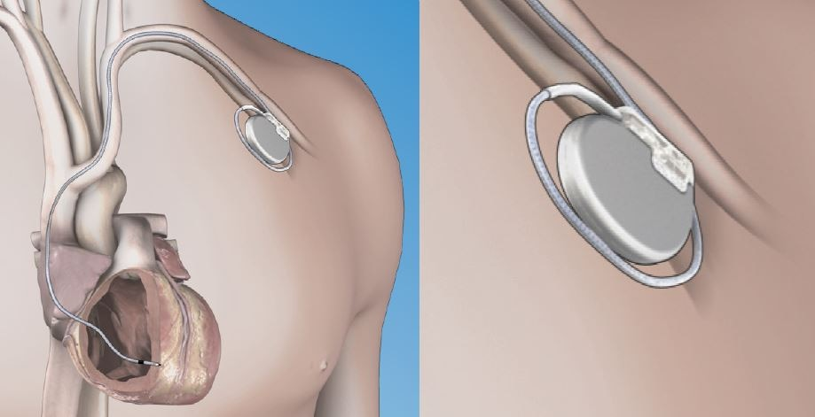 traditional pacemaker implant