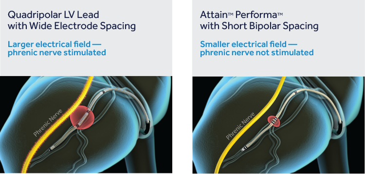 Image of quadripolar lead with wide electrode spacing. With the larger electrical field, the phrenic nerve is stimulated. Next to image of Attain Performa Lead with short, bipolar spacing. With the smaller electrical field, the phrenic nerve is not stimulated.
