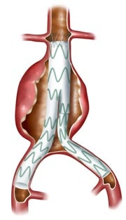 Abdominal aortic aneurysm with endovascular stent graft in place