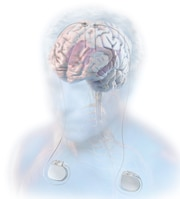 Implant diagram of the deep brain stimulation system
