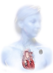 A cardiac resynchronisation therapy device is typically implanted in the upper chest