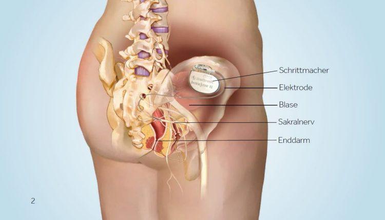 Anatomie Kontinenzprobleme