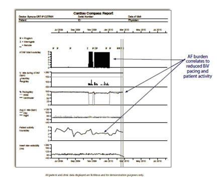 Example of Cardiac Compass Report for the Syncra CRT-P pacemaker