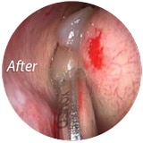 After Using Endo-Scrub 2 Endoscope Lens Cleaning Sheath