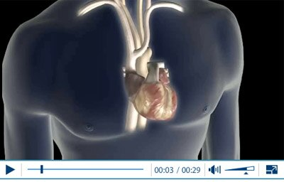 Animation of Atrial Fibrillation