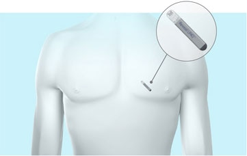 The ultra-discreet heart monitor is not visible in most patients