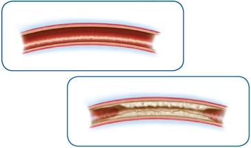 PAD - Comparison of Arteries