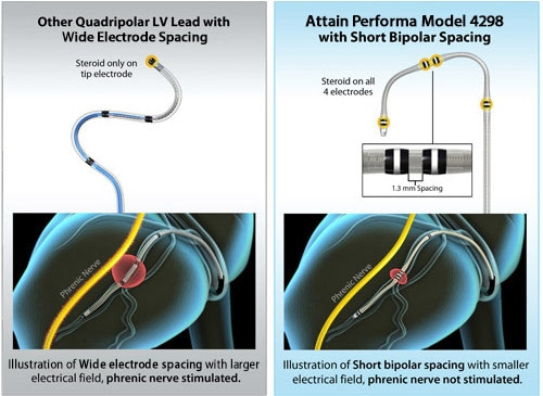 Attain Performa with Short Bipolar Spacing vs Other Quadripolar LV Lead with Equal Electrode Spacing