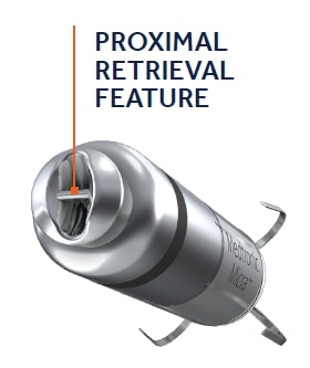 Image of proximal retrieval feature