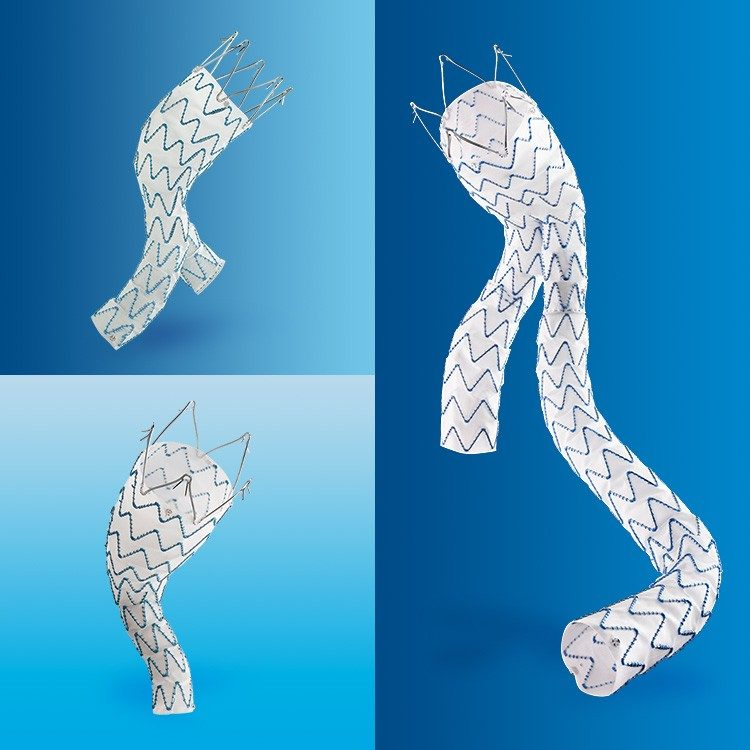 Endurant II Stent Grafts