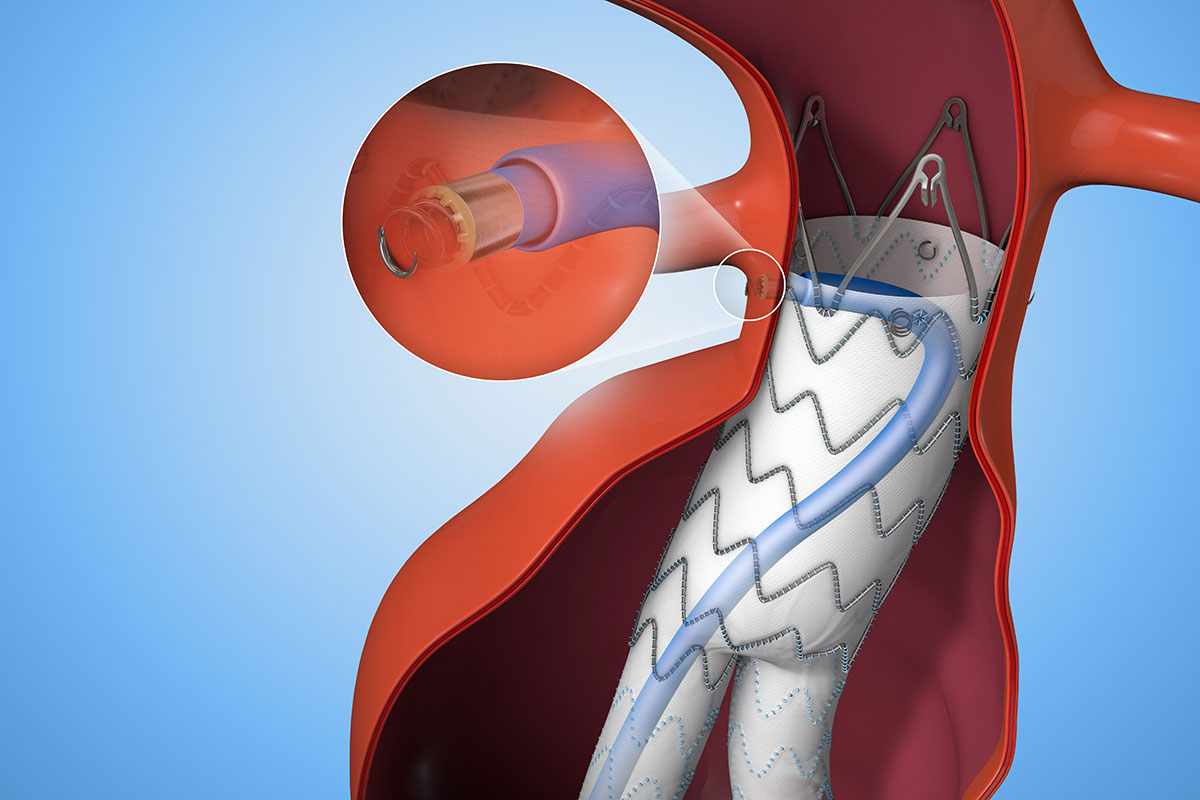 Endurant II/IIs Stent Graft System with Heli-FX EndoAnchor System