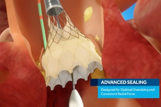 Image of Evolut PRO Transcatheter Aortic Valve showing how the oversizing facilitates consistent radial force