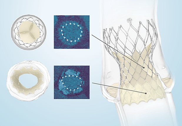 Image of a the Evolut TAVR Circularity Leaflet Coaptation