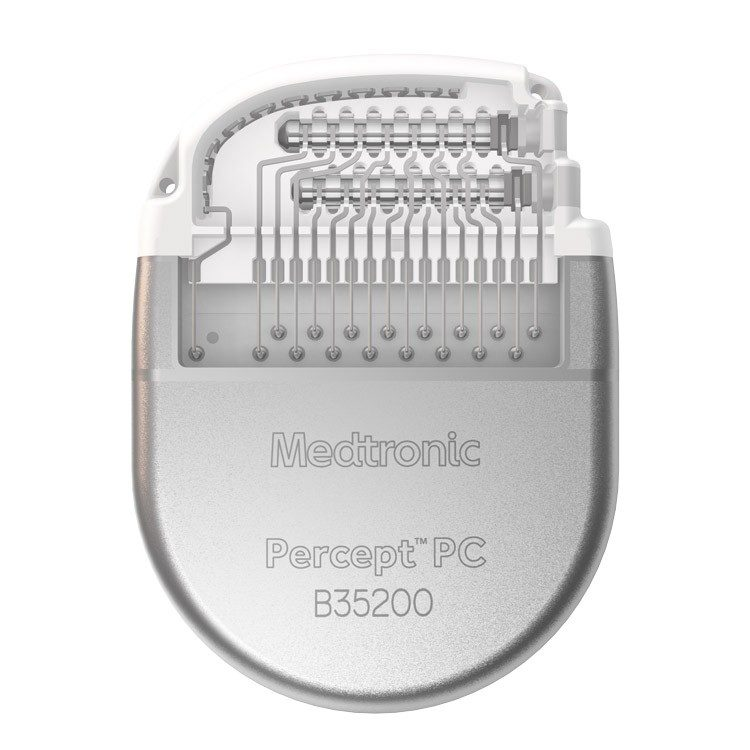 Closeup of the Percept PC neurostimulator for deep brain stimulation.