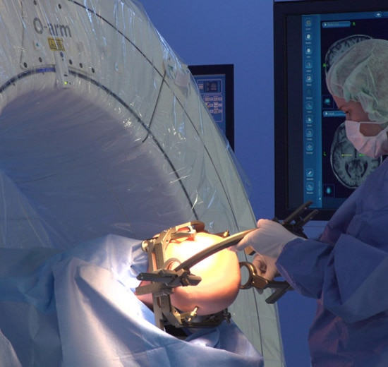 Doctor uses O-arm system during neurology procedure
