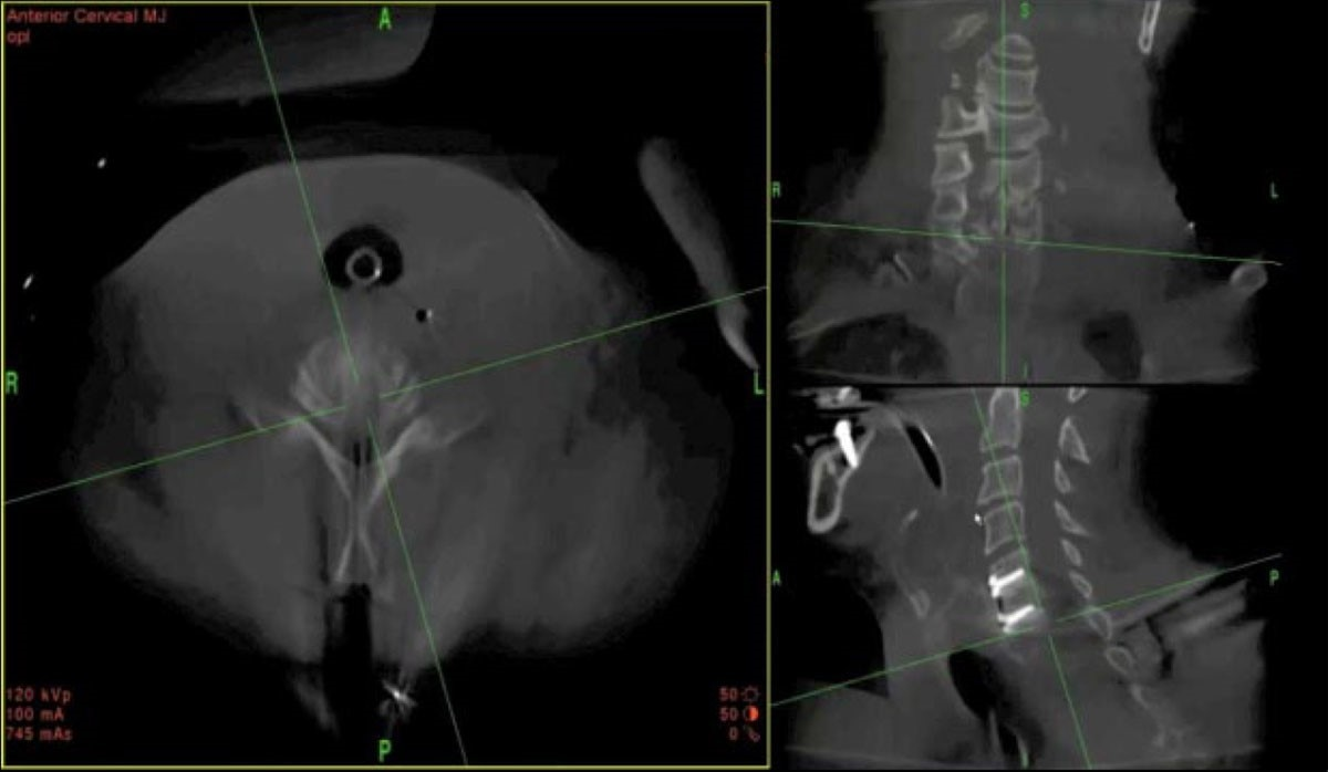 O-arm system imaging of  cervical fusion confirmation.