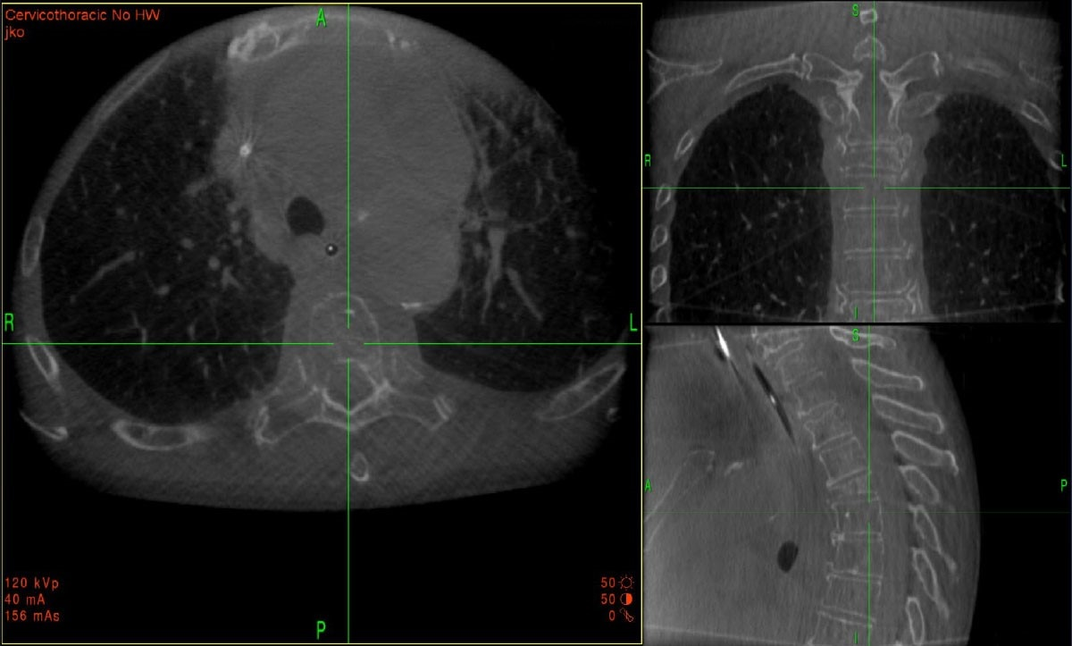 O-arm system imaging of cervicothoracic junction confirmation registration.