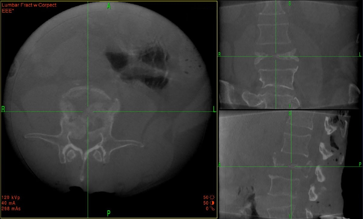 O-arm system imaging of lumbar fracture registration scan.