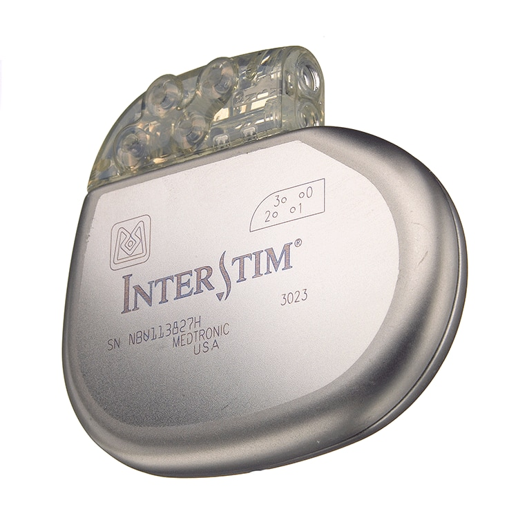 Interstim Neurostimulator