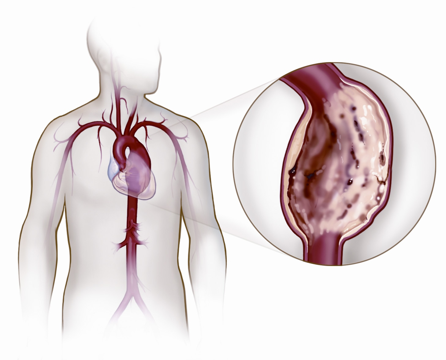 Aortic and Peripheral Disease Management Image Library | Medtronic