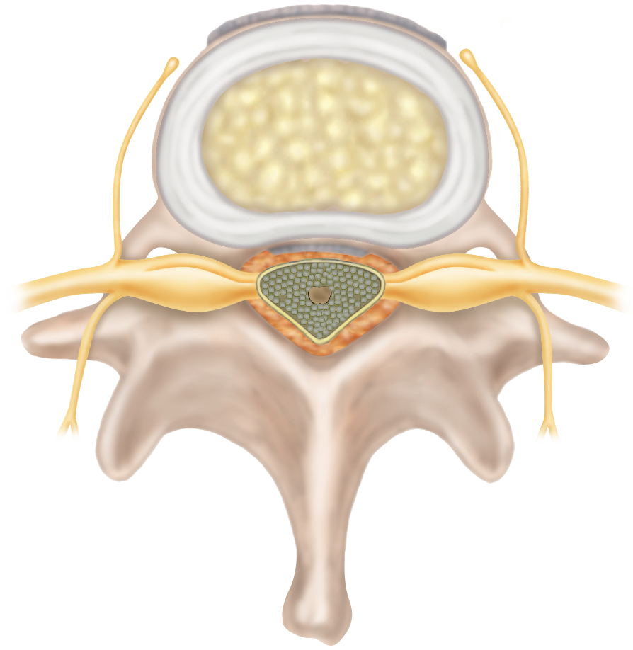 Cervical Herniated Disc Conditions Medtronic