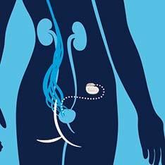 Interstim bladder illustration