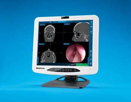 Product image of the Medtronic Compact Fusion ENT Navigation System, which integrates with NuVent for balloon sinus surgery procedures.